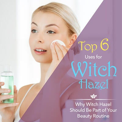 Why Witch Hazel Should Be Part of Your Beauty Routine