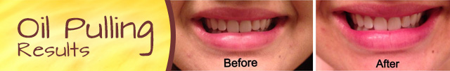 oil pulling before and after results