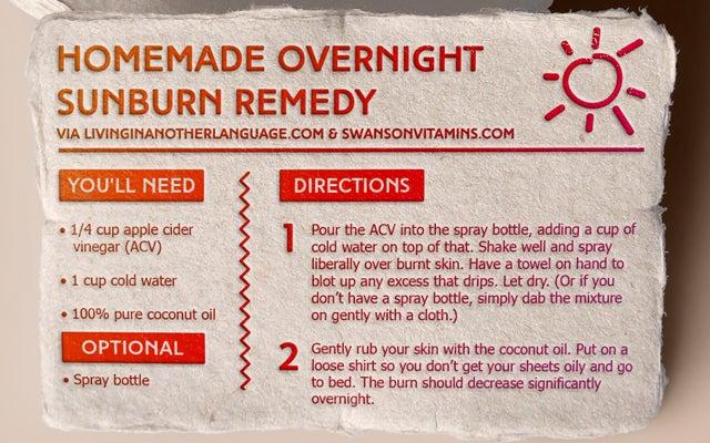 DIY Homemade Sunburn Remedy